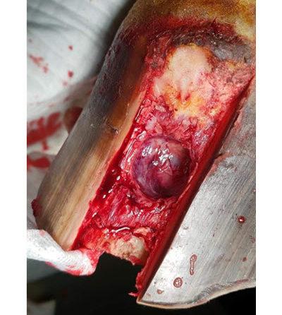 Post Keratoma surgery 8 Jan
